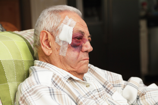 A man with a dreadful blotchy black and blue (and red) eye also has a large bandage covering several medical stitches in his temple after a car accident.